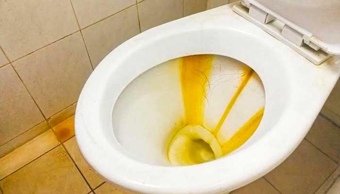 Жёлтые отложения в унитазе